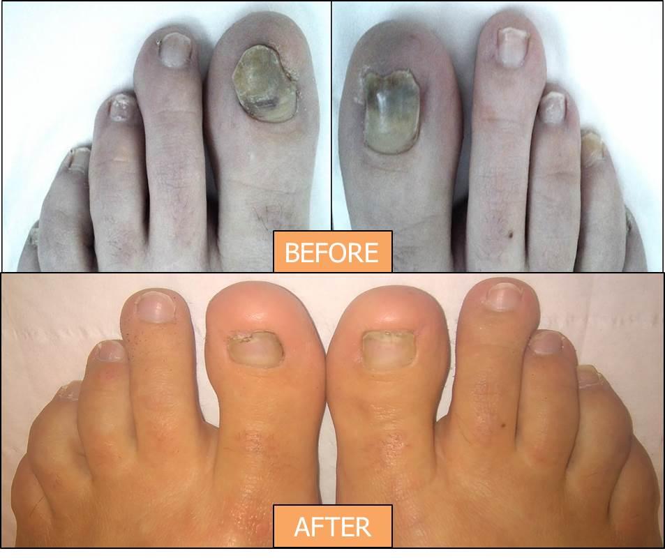 21-century-podiatry-feet